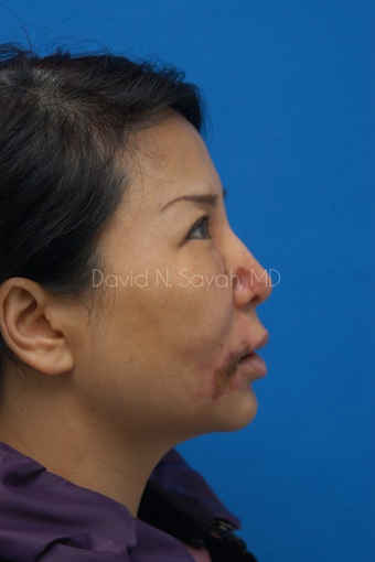 Scar Removal before 1895520