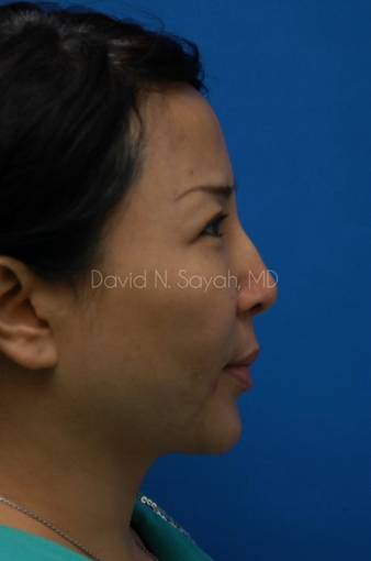 Scar Removal after 1895520