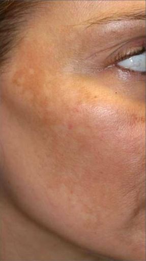 Fraxel - Melasma before 652323