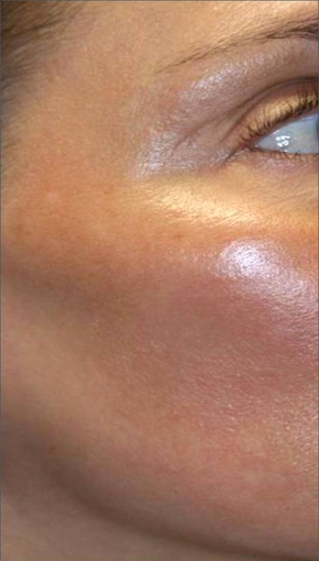 Fraxel - Melasma after 652323