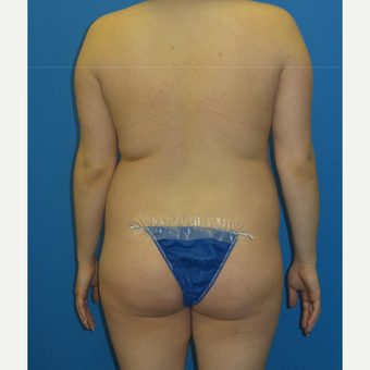 18-24 year old woman treated with Brazilian Butt Lift before 3341379