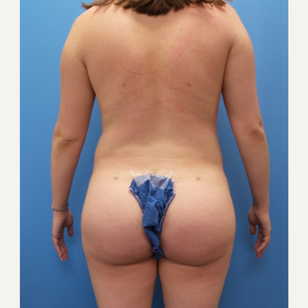 18-24 year old woman treated with Brazilian Butt Lift after 3341379