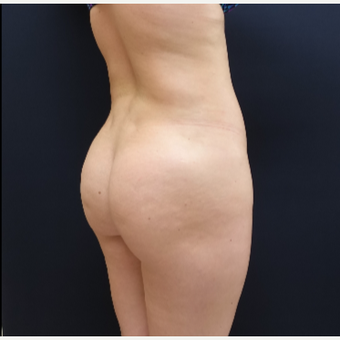 25-34 year old woman treated with Butt Augmentation using 712cc Round Silicone Butt Implants before 3259513
