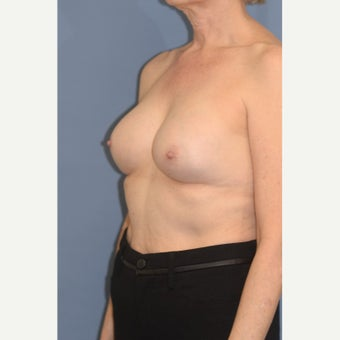 Silicone Breast Implant Leaking 107