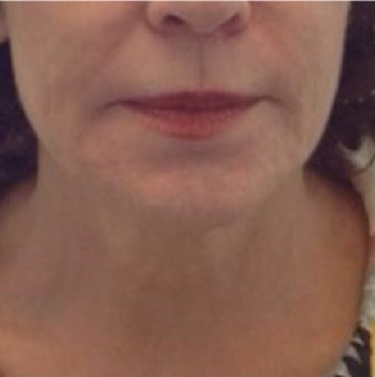 55-64 year old woman treated with Exilis after 2490387