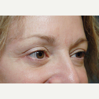Eyelid Surgery after 3108910