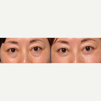 Tear trough / eye bags treated with permanent fix - lower lid blepharoplasty with fat transposition before 2755634
