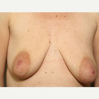 35-44 year old woman treated with Breast Augmentation before 3072375