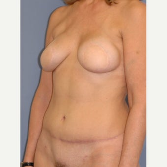 45-54 year old woman treated with Breast Reconstruction 1835933
