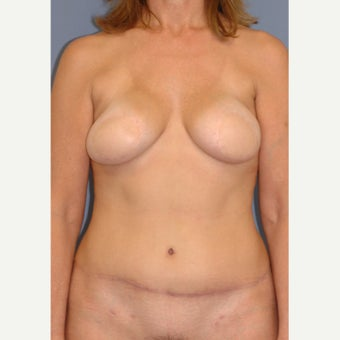 45-54 year old woman treated with Breast Reconstruction after 1835933