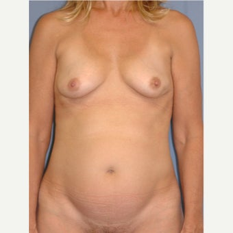 45-54 year old woman treated with Breast Reconstruction before 1835933