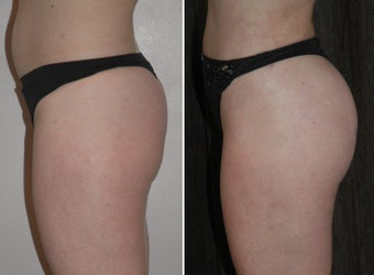 Brazilian Butt Lift with BodyTite liposuction before 597076