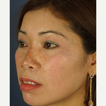 35-44 year old woman treated with Non Surgical Nose Job after 2074336