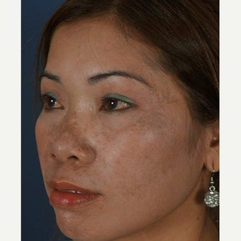 35-44 year old woman treated with Non Surgical Nose Job before 2074336