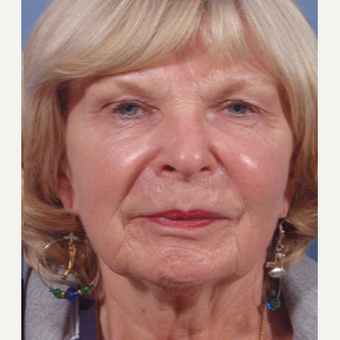 65-74 year old woman treated with Restylane after 3725330