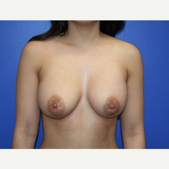 25-34 year old woman treated with Breast Augmentation after 2994235