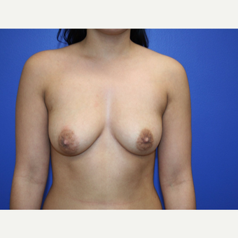 25-34 year old woman treated with Breast Augmentation before 2994235
