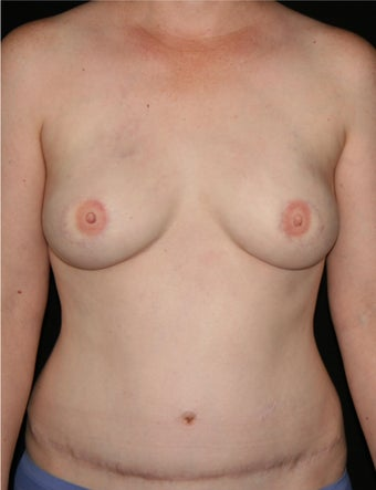 39 y/o - Immediate Bilateral DIEP Flap Breast Reconstruction after 1335757