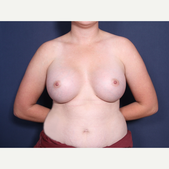 18-24 year old woman treated with Breast Augmentation after 3782380