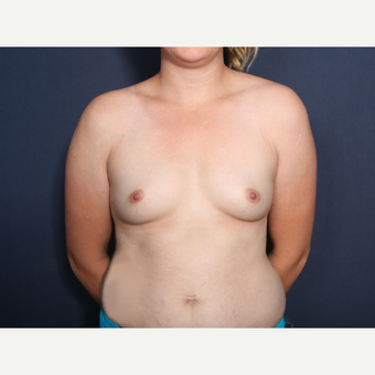 18-24 year old woman treated with Breast Augmentation before 3782380