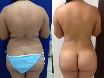 liposculpture and Gluteoplasty 1317327