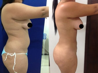 liposculpture and Gluteoplasty after 1317327