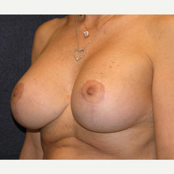 45-54 year old woman treated with Breast Implants after 3455500