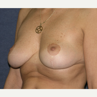 45-54 year old woman treated with Breast Implants before 3455500