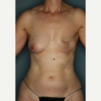 45-54 year old woman treated with Lumbar Artery Perforator Flap Breast Reconstruction before 3484824