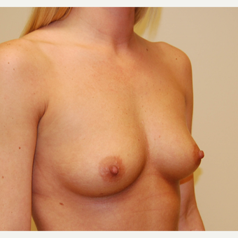 25-34 year old woman treated with Breast Augmentation before 3287720
