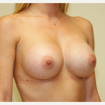 25-34 year old woman treated with Breast Augmentation after 3287720