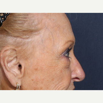75 and up year old woman treated with Eyelid Surgery (view 2 of 2) before 3710616