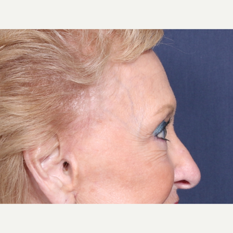 75 and up year old woman treated with Eyelid Surgery (view 2 of 2) after 3710616
