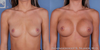 18-24 year old woman treated with Breast Augmentation before 3768381