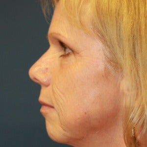 55-64 year old woman treated with Laser Peel before 2448917