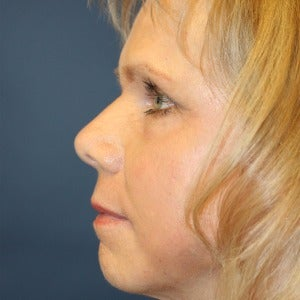 55-64 year old woman treated with Laser Peel after 2448917