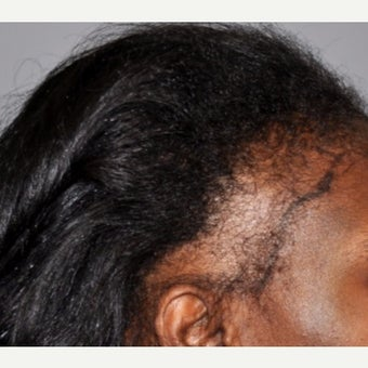 45-54 year old woman treated with Hair Transplant before 2002130
