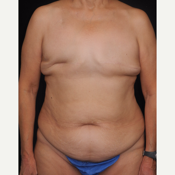 65-74 year old woman with DIEP flap breast reconstruction before 3742027