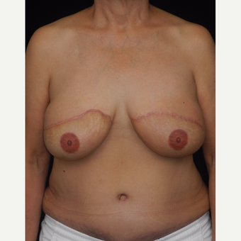 65-74 year old woman with DIEP flap breast reconstruction after 3742027