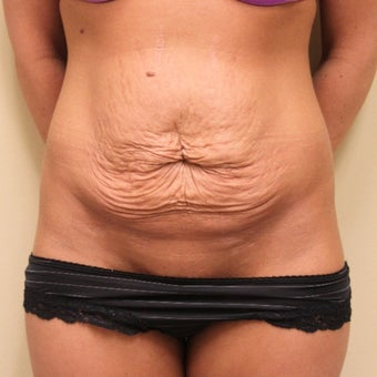 25-34 year old woman treated with Tummy Tuck before 1651071