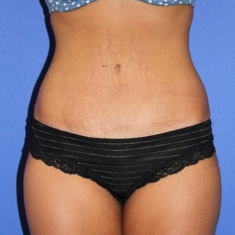 25-34 year old woman treated with Tummy Tuck after 1651071