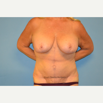 60 year old woman treated with breast lift with implants and fleur-de-lis abdominoplasty after 3095585