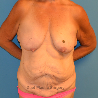 60 year old woman treated with breast lift with implants and fleur-de-lis abdominoplasty before 3095585