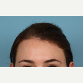 18-24 year old woman treated with Hairline Lowering Forehead Reduction after 3588523