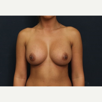 25-34 year old woman treated with Breast Augmentation after 3344076