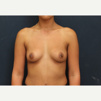 25-34 year old woman treated with Breast Augmentation before 3344076