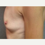 35-44 year old woman treated with Breast Lift before 3088622