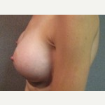 35-44 year old woman treated with Breast Lift after 3088622