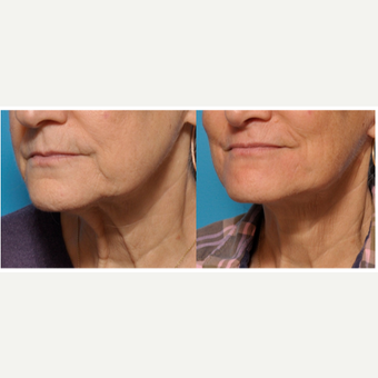 Lower Face and Neck Lift with Full Laser Resurfacing Around the Mouth before 3793549