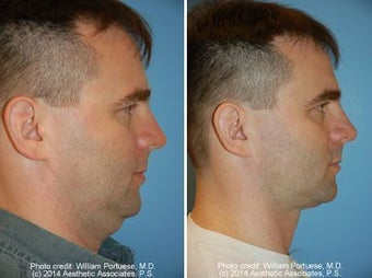Neck Liposuction before 212300